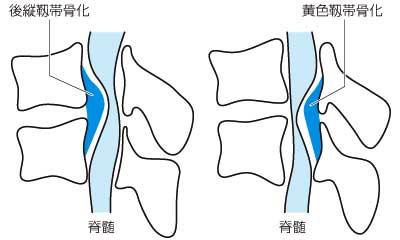 黄色靭帯骨化症を発症する仕組み